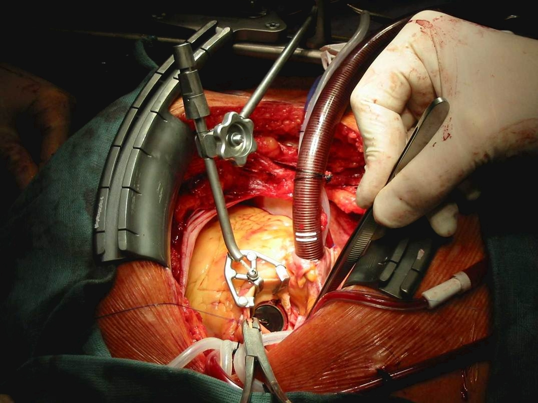Self Photos / Files - Cor-Valv Surgical Set up - Aortic 1